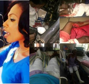 Nigerian Artiste Whose Leg Was Crushed By Dangote Truck Cries Out For Justice