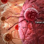 43% Of Cancer Death Caused By Tobacco, Diet, Infection – Oncologist