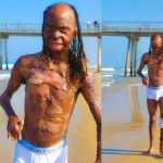 Burns Survivor, Ken Dawg Releases Body Photos To Promote Positivity