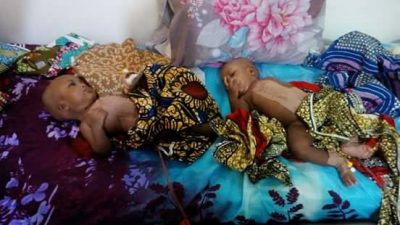 Separated conjoined twins in Yola