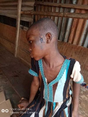 11-Years Old Girl Beaten, Fed With Cockroach And Faeces In Awka, Rescued