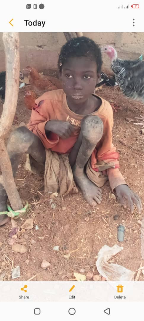 Jibril was chained like an animal for two years but has been rescued