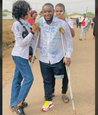 He lost his after being hit by a stray bullet during the EndSARS protest
